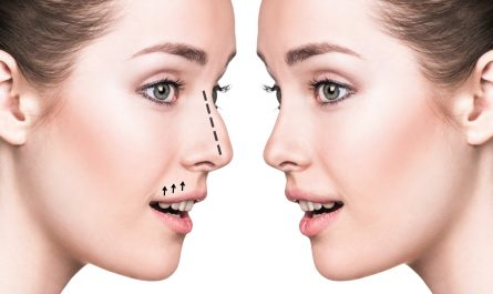 4 Tips for Finding the Best Rhinoplasty Surgeon for You