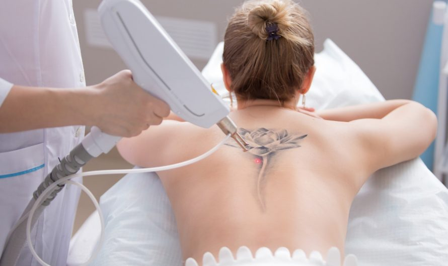 Debunking the Most Common Tattoo Removal Myths That Exist Today