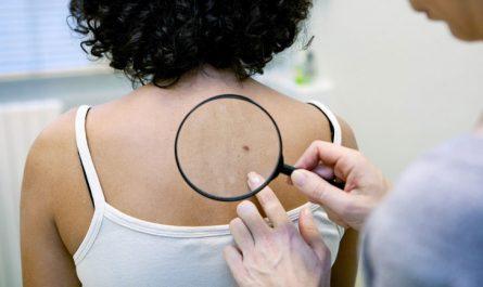 Flat Moles Skin Health - Willtiptop.com
